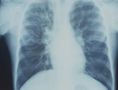 Niedodma u palaczy - choroba POCHP